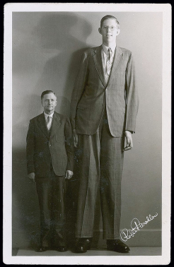 Image taken from http://en.wikipedia.org/wiki/Robert_Wadlow